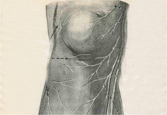 Neural Prolotherapy-Knee